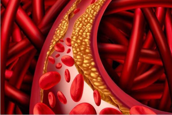 Risoluzione Problemi Colesterolo Farmaincentro Salute E Benessere