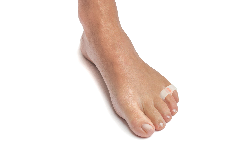 Custom double looped small toe corrector
